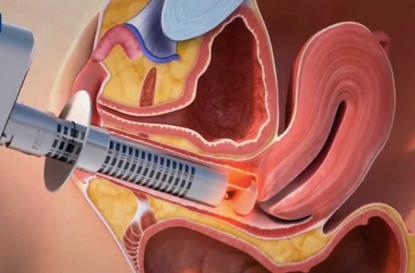 Laser intravaginal: redução da flacidez, melhora da lubrificação e elasticidade da vagina.