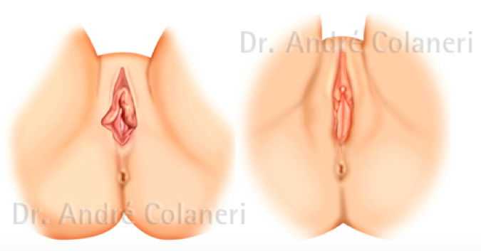 Labioplastia Antes / Labioplastia Depois
